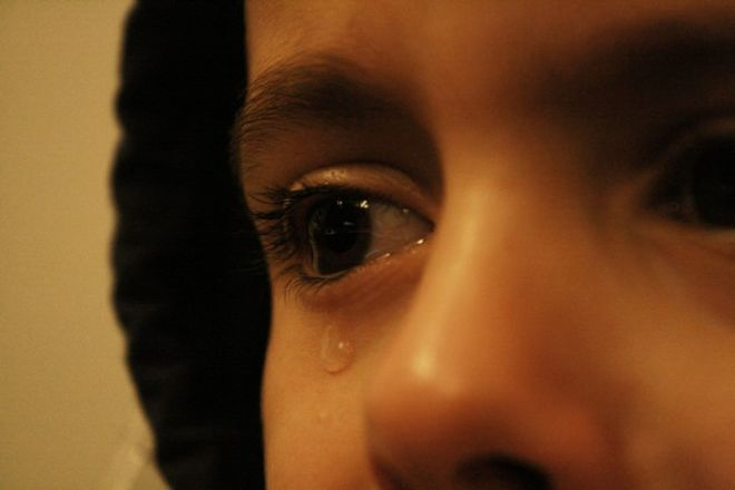 All You Need To Know About Dry Eye Syndrome